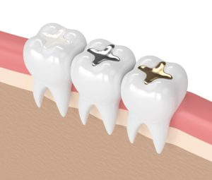 Composite Tooth-Colored Fillings » Shawnee, KS | Legacy Dental