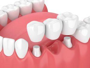 dental bridge computerized image
