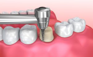 placing a dental crown