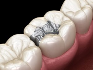 Silver inlay on a white tooth