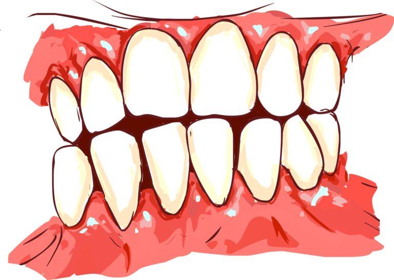 Gum recession and gum disease