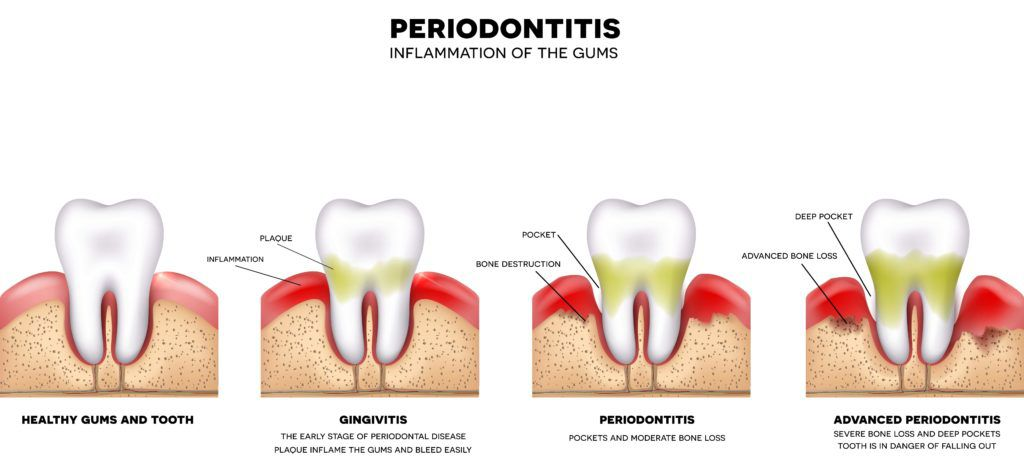 Diagram of healthy teeth, gingivitis, periodontitis, and advanced periodontitis