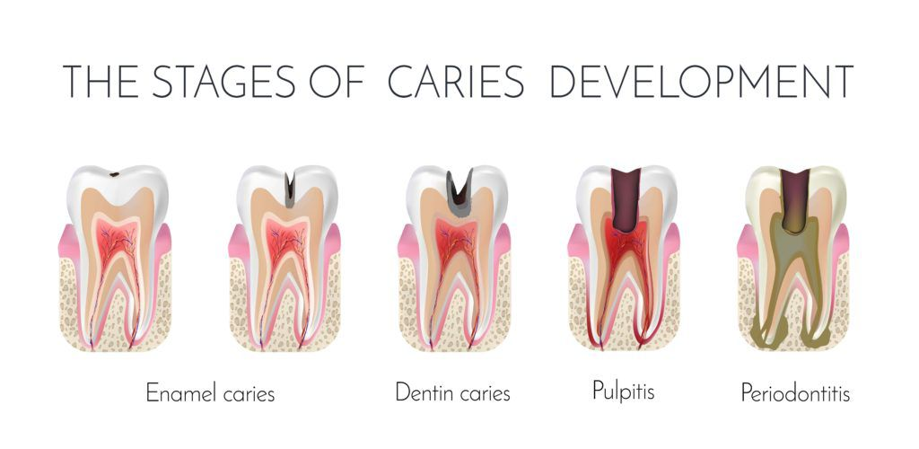 Various stages of cavity development from enamel cavities, to dentin cavities, to pulpitis, and finally to periodontitis.